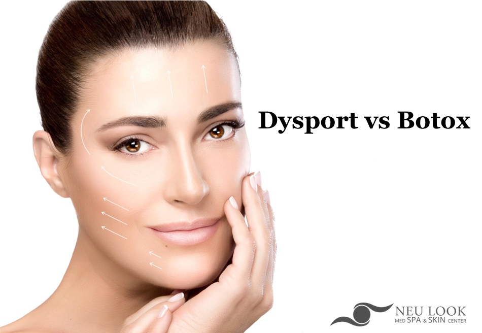 difference between dysport vs botox