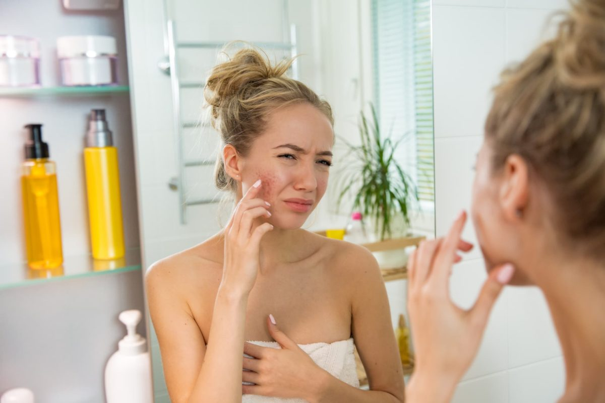How To Get Rid of Facial Redness?