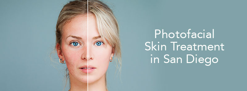 photofacial-skin-treatments in san diego