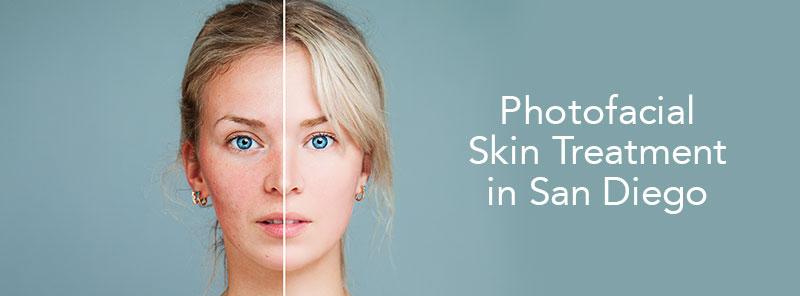 photofacial-skin-treatments in san diego