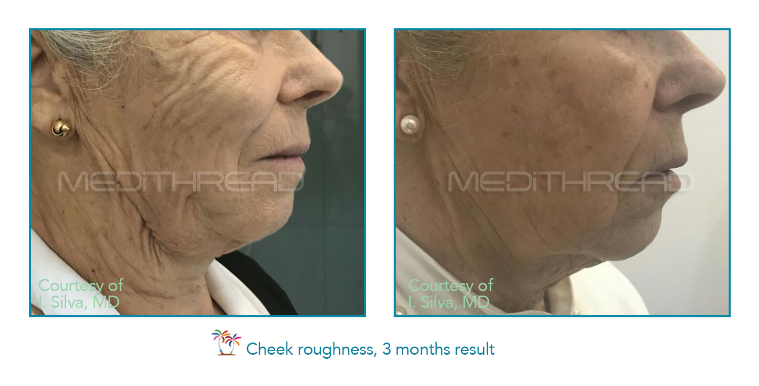 medi thread treatment for cheeks