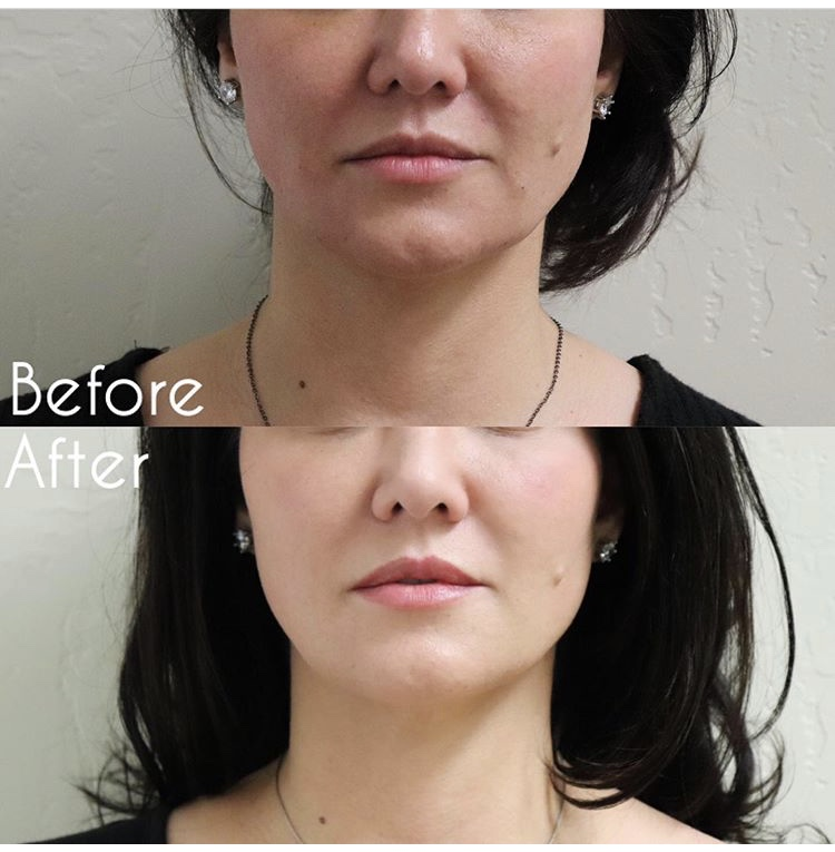 Before and after thread lift at Neu Look Med Spa and Skin Center