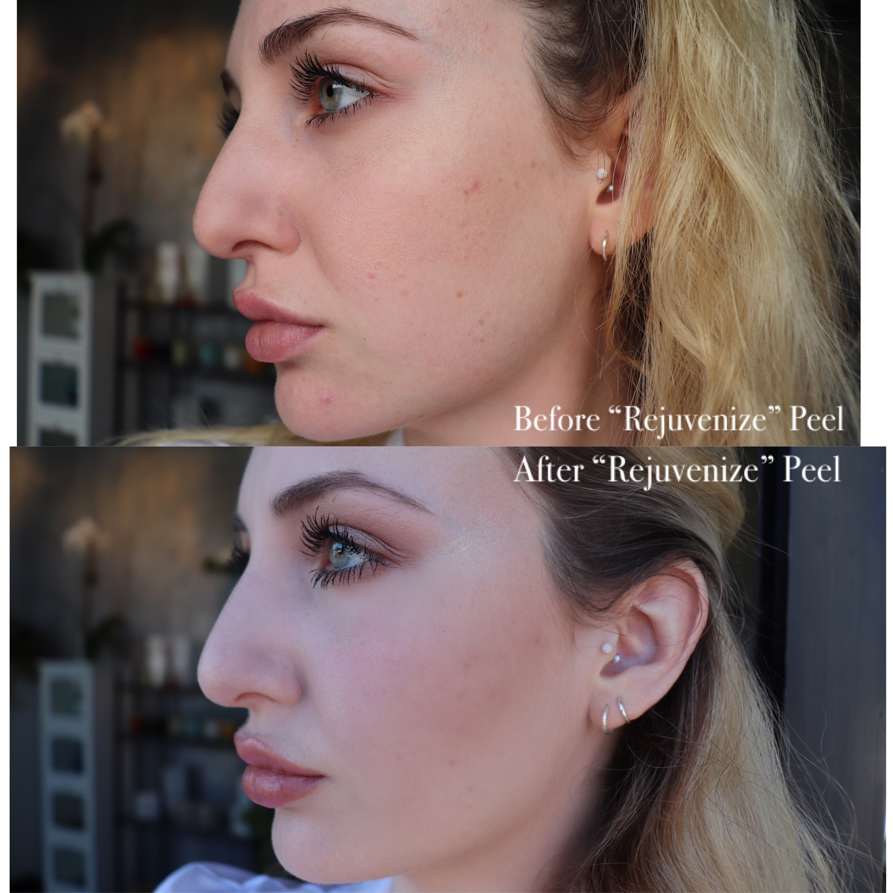 Revitalized peel, before and after Juvederm treatment at Neu Look Med Spa and Skin Center