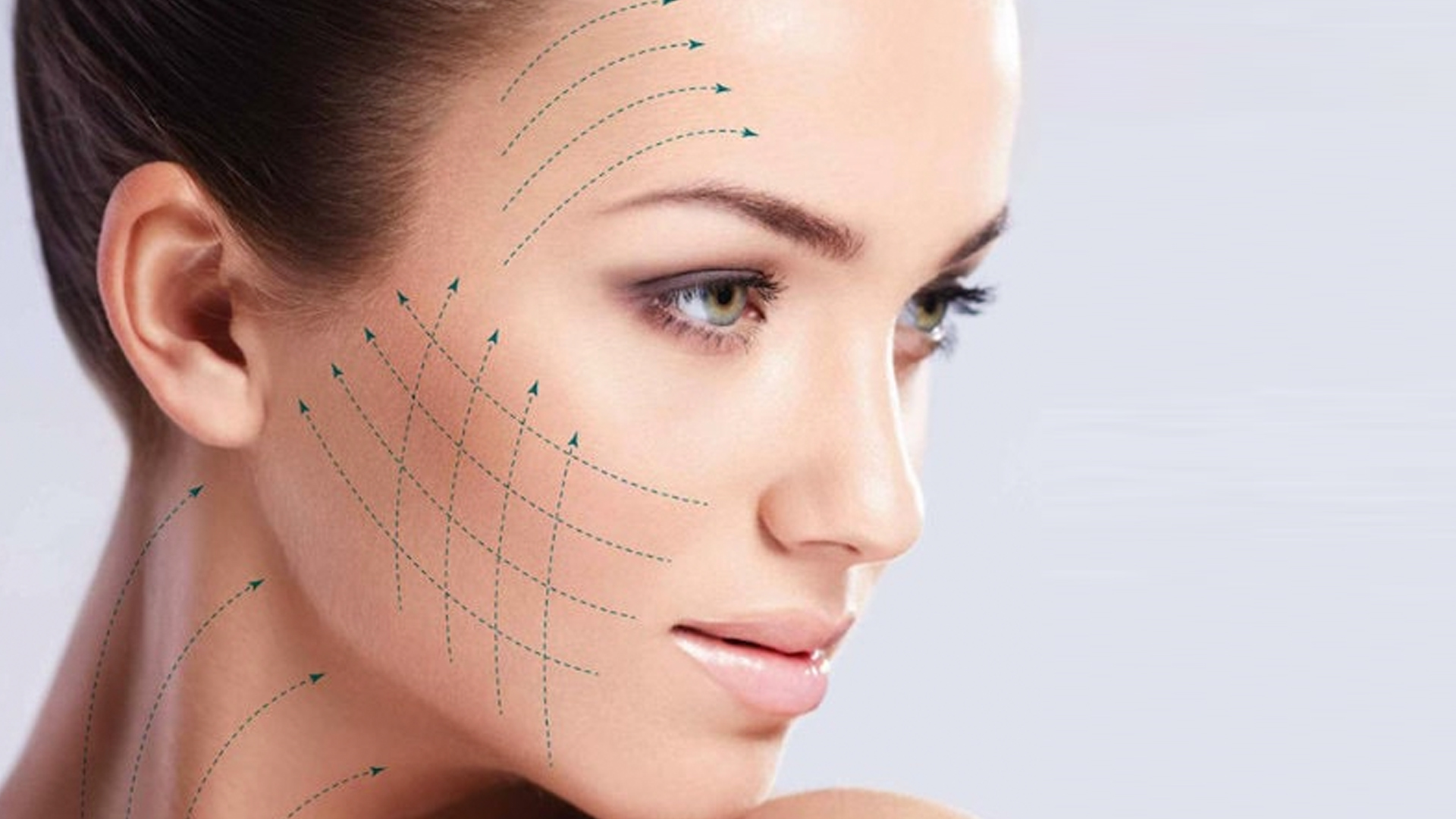 A Little Bit About Thread Lifts - Neu Look Med Spa Skin Center San Diego California